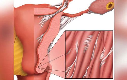 Фото: Гиперплазия эндометрия после родов: причины